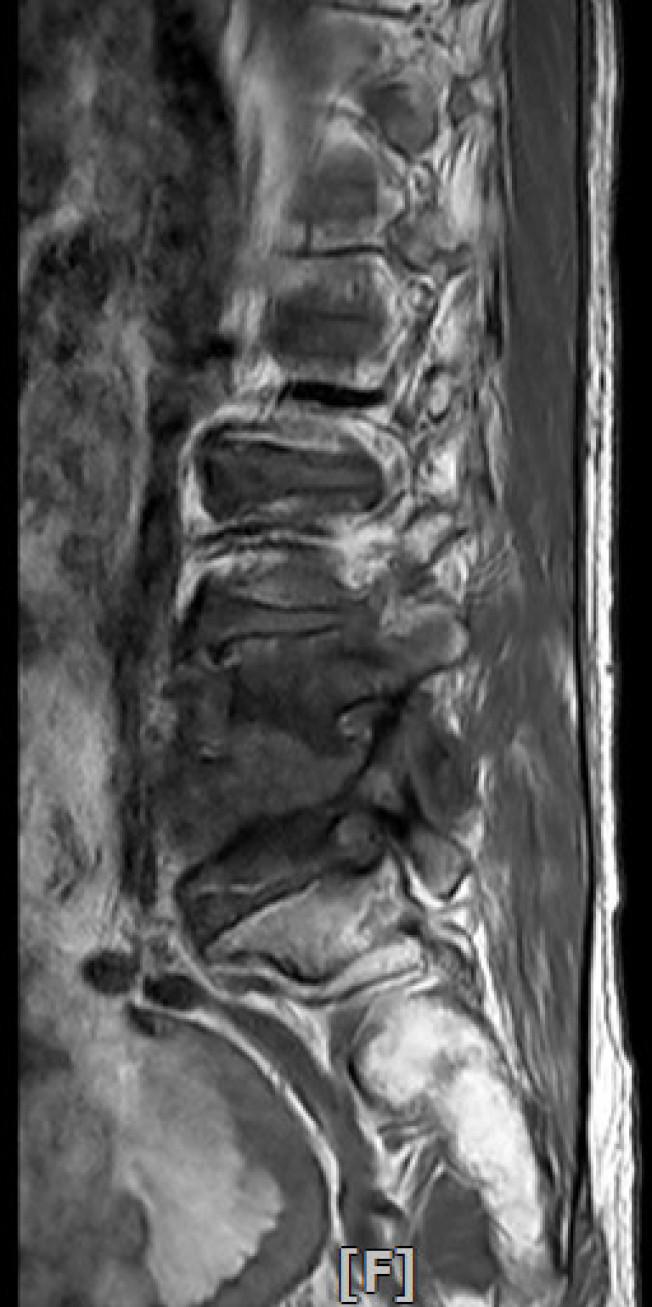 患者椎間盤嚴重被腐蝕位置。(圖:童綜合醫院提供)