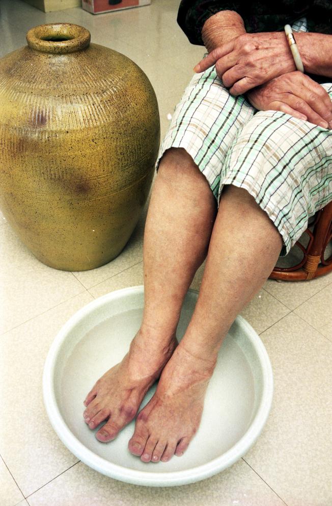 冬季氣溫降低,老人家可以用熱水泡腳,促進血液循環。(本報資料照片)