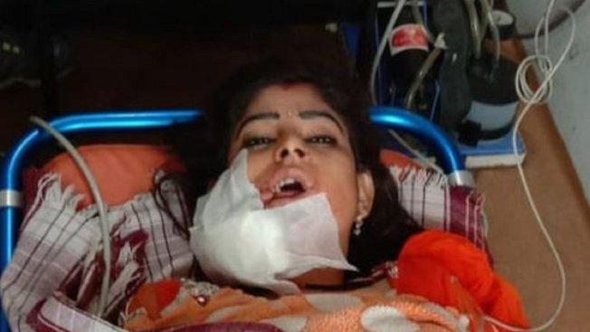 印度婚宴上竟傳出槍響,一名女舞者臉部中彈,正在醫院救治中。畫面翻攝:BBC/SUSHEEL SHUKLA