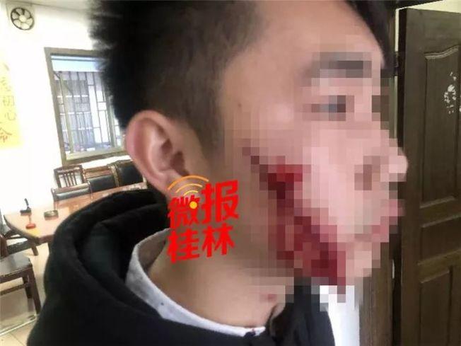 男子臉上被劃了兩道傷口,深可見肉。(取材自桂林日報)