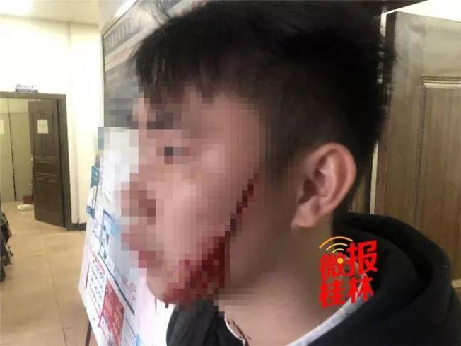 男子臉上被劃了兩道傷口,都有約10厘米長。(取材自桂林日報)