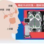 台灣醫療奇蹟/不須臥床!微創手術治鼻病