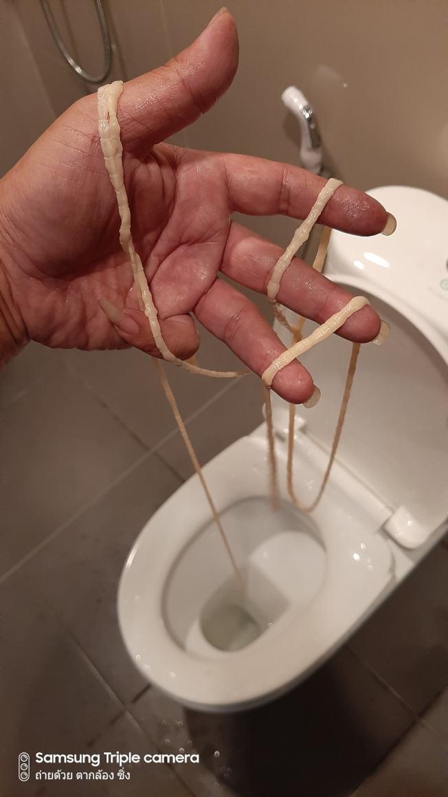 泰國東北烏隆府(Udon Thani)一名男子日前上廁所,突然感覺怪怪的,好像有什麼東西卡在屁股,隨即驚恐發現自己大出一條10公尺長的絛蟲。Newsflare