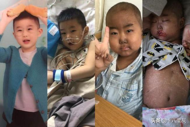 父割肝抽髓 5歲兒:甭救我了 媽媽再生個寶寶 不用天天哭