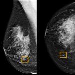突破!用AI找出乳癌腫瘤 可減少醫師誤判