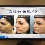 做臉感染…熟女鼻樑被細菌侵蝕  塌陷變「馬鞍鼻」