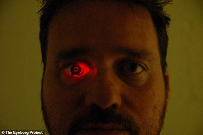 加拿大製片人史潘斯幼年試射霰彈槍、遭逢意外,導致右眼失明,2008年換上一個嵌入攝影機的義眼。最新版義眼會發出紅光,有如電影裡的「魔鬼終結者」。取材自Daily Mail