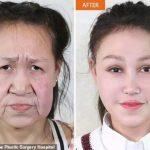 罹患罕見皮膚早衰症 少女整形術後首度亮相