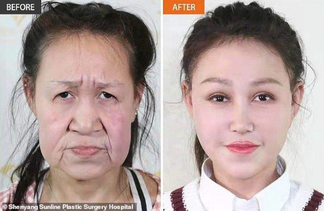 少女罹皮膚早衰鬆弛症,15歲就頂著一張60歲「老臉」(左),在慈善團體、整形外科醫院協助下,終於找回少女應有的相貌(右)。(翻攝自每日郵報/瀋陽杏林整形外科醫院)
