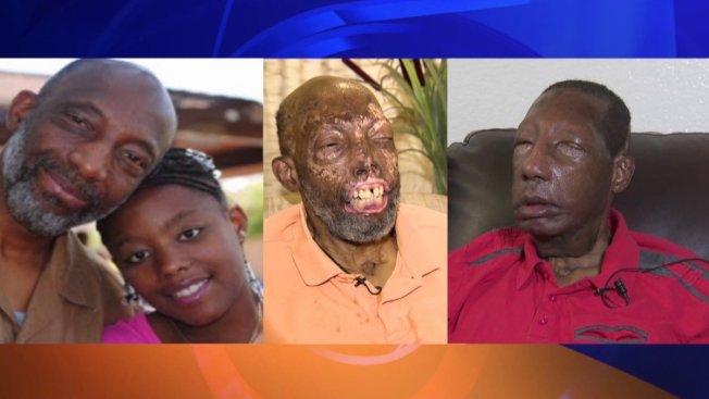 (左圖)雀爾西毀容前與女兒合影。(中圖)雀爾西毀容後的模樣。(右圖)雀爾西的「新臉」。(KTLA電視台)