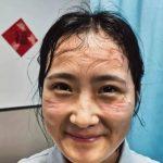 滿臉勒痕! 武漢最美醫護動人 網友:真想給她抹點藥膏