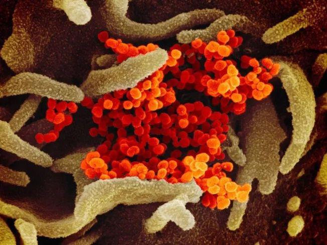 與SARS相較,新冠病毒基因成功測序時間縮短到一個月內。(取材自新京報/美國國家過敏與傳染病研究所供圖)