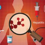 美國C肝患者增加 當局籲篩檢擴大 18~79歲全納入