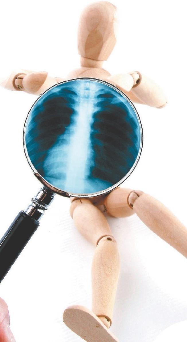 透過基因檢測,讓肺癌病友用對標靶藥物。(本報資料照片)