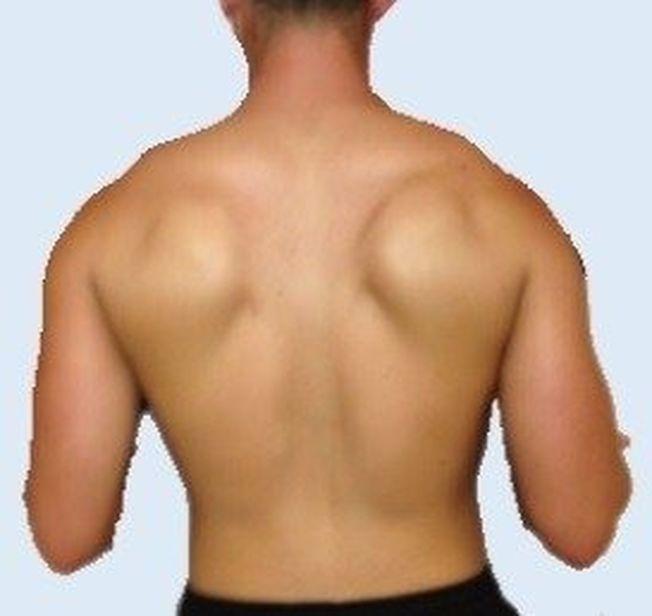 肩胛長出雙翼當心神經傷害