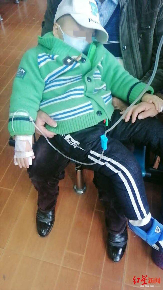 今年五岁的小胡,在一岁多时便被确诊为肝母细胞瘤,4年来做了17场手术。(取材自红星新闻)