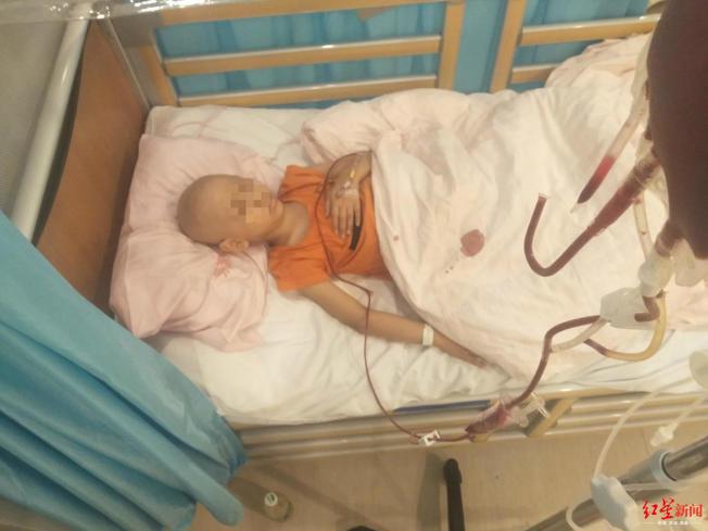七岁的小陈,原计画于1月31日做干细胞移植,却因为疫情无法前行。(取材自红星新闻)