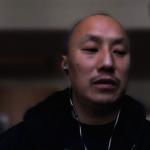 亞裔病患飽受折磨 仍無法檢測