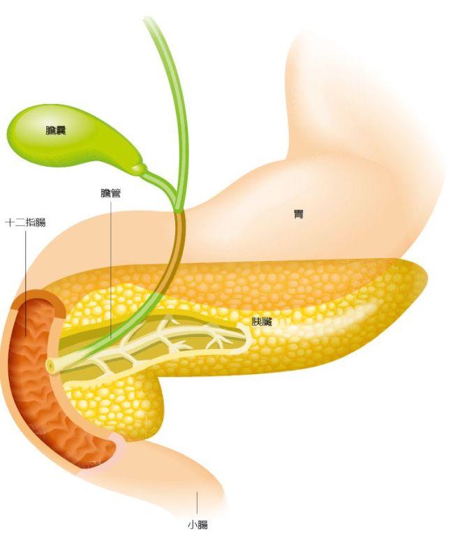 胰臟癌沒有好的篩檢工具,早期也無明顯症狀。(本報資料照片)