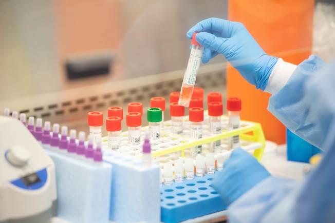 美國加速開發大規模檢測能力,圖為長島一家醫學實驗室採用半自動檢測設備,一次可以檢測多個檢體。(Getty Images)