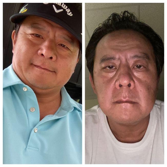 陳正欣3日分享他染疫前(左)與染疫後(右)的照片。(陳正欣提供)