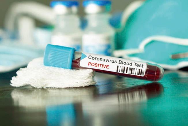 史丹福大學科學家懷疑,新冠病毒可能早在去年秋季就已在加州出現。(Getty Images)