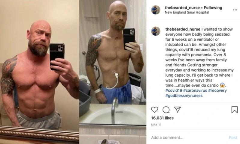 麥克感染新冠肺炎讓他體重從86掉到63公斤,他在病房中花了好幾分鐘,用盡全力地從病床上站起來,拍攝了右邊的照片。取材自BuzzFeedNews