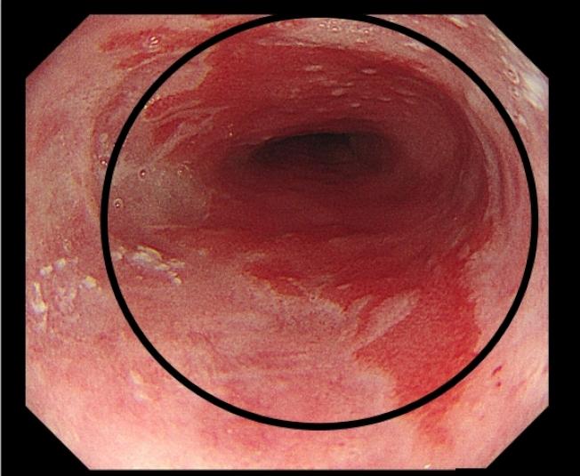 食道腺癌之癌前病變,巴瑞特食道合併食道分化不良。(圖:台灣花蓮慈濟醫院提供)