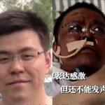 救治逾4個月…武漢染疫「黑臉」醫師胡衛鋒走了