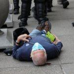 被水牛城警察推倒的75歲示威者 腦部損傷需理療