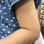紅、腫、癢、脫屑… 異位性皮膚炎怎麼防?