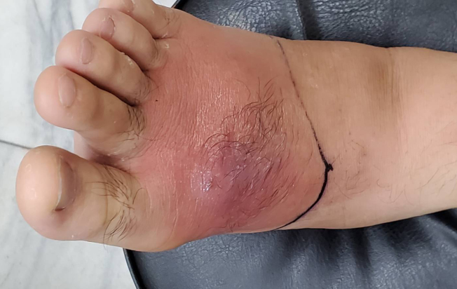 台灣花蓮一名男子調養身體針灸,卻沒留意傷口清潔,腳背紅腫,引發蜂窩性組織炎。(圖:門諾醫院提供)