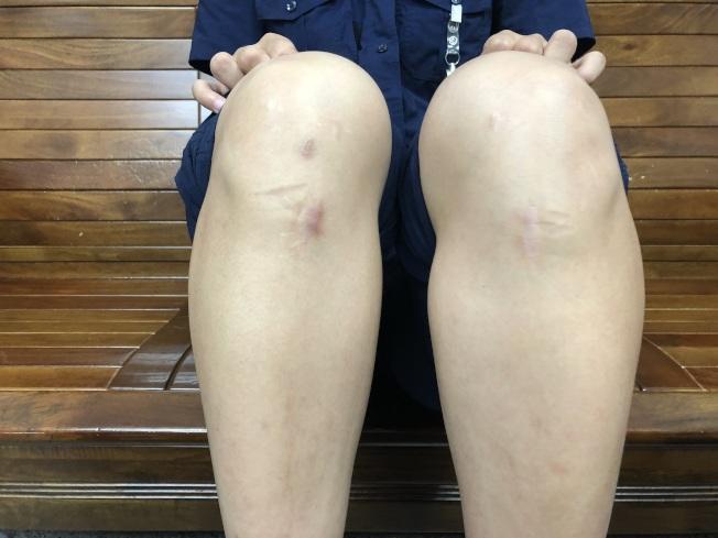 雙腿無力 婦罹罕病脊髓空洞症