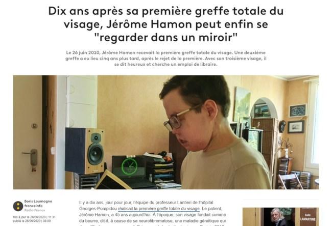 法國男子阿蒙因罹患罕見疾病,兩度換臉。( Getty Images)