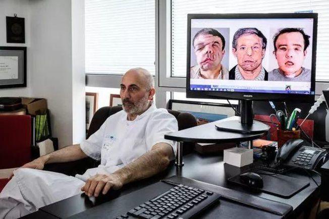 圖為醫師藍提耶里展示阿蒙全臉移植手術的變臉過程。( Getty Images)