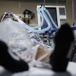 醫生操作變熟練 新冠患者使用呼吸器 死亡率從80%到35%