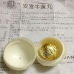 北京新冠重症者吃了安宫牛黄丸后脱险 中医有话说…