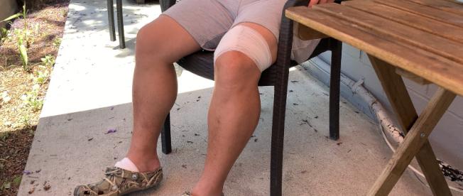 楊連慧腿和腳部也被劃傷。(記者張宏/攝影)