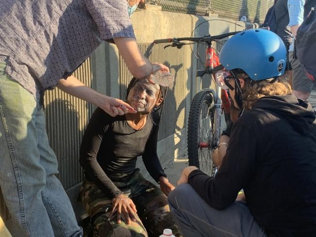 一名非洲裔女子被辣椒水噴霧噴中後使用牛奶清洗雙眼。(記者黃伊奕/攝影)