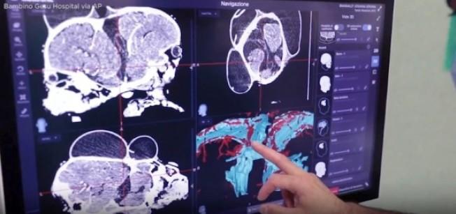 這對女嬰的頭骨背對背連在一起。圖擷自abc 7 news