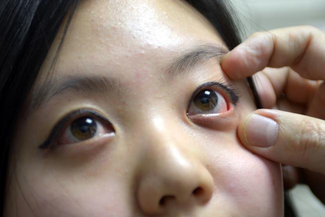 蛋白偏寒性,可以治療眼睛發炎、咽喉疼痛。(本報資料照片)