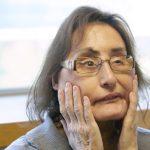 移植80% 美首位部分臉部移植者57歲過世