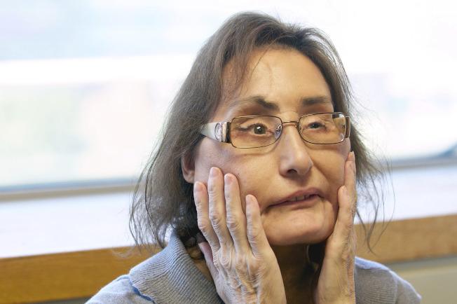 曾接受30次手術、全美首位接受部分臉部移植的康妮·卡普以57歲之齡去世。(美聯社)