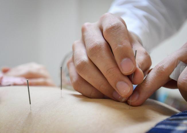 研究證實 針灸治療加速改善中風