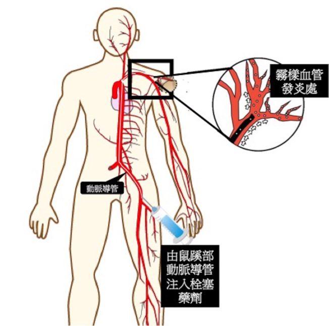 微創血管栓塞術 緩解關節痛