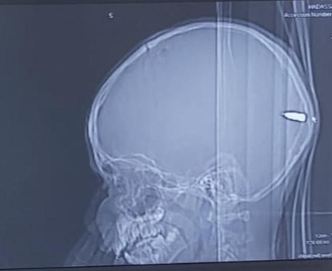 以色列一名9歲巴勒斯坦男孩日前因昏昏欲睡就醫,檢查後發現他的大腦卡著一顆子彈,值班的神經外科醫師立刻決定開刀取出。(翻攝:MAILONLINE)