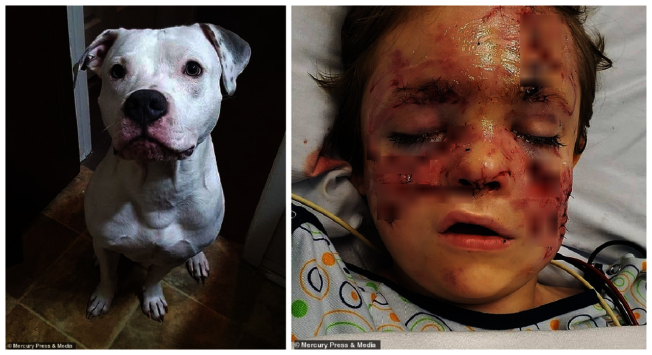 惹禍的比特犬「混亂」(左)與剛動完手術的坎登(右)。畫面翻攝:MAILONLINE/Mercury Press & Media