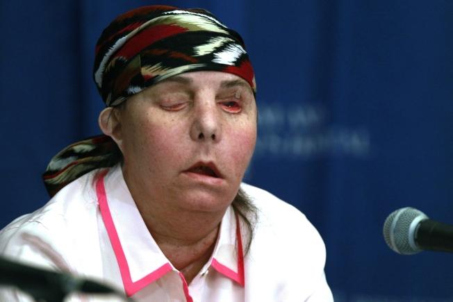 52歲的卡門·塔萊頓剛剛寫下歷史,成為全美第一位、全球第二位兩度接受換臉手術的人。圖為塔萊頓2013年第一次接受臉部移植後出席記者會。(美聯社)