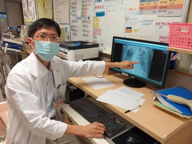 嘉義長庚醫院胸腔內科醫師林玠模指出,吸入性肺炎好發族群,包括年紀大病人、長期臥床、慢性病、失智、中風等。(圖:嘉義長庚提供)