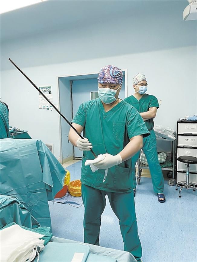 醫生手拿著取出的鋼筋。(取材自羊城晚報)